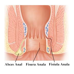 De ce toate articulațiile tratează fisurile, Fisurile anale in colita ulcerativa - cum se trateaza