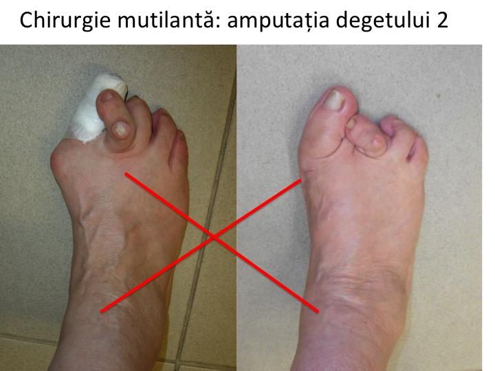 deformări ale degetelor de la picioare cu artrită Tratamentul articulației șoldului de gradul 1