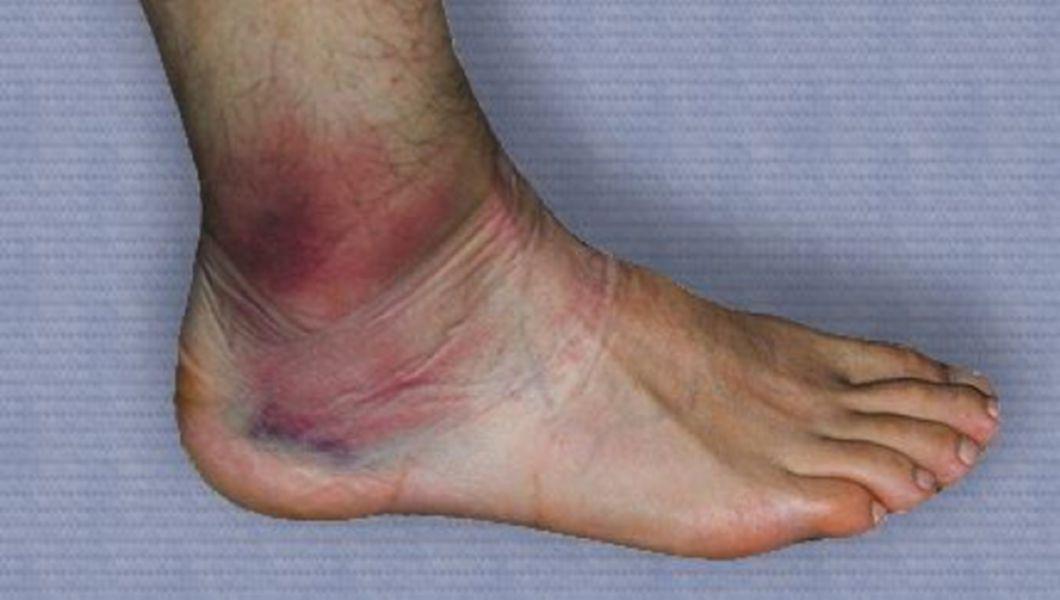 deteriorarea ligamentelor umflăturii gleznei