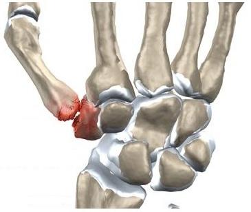 durere a articulației degetului secundar umflat