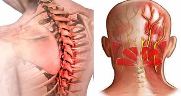 durere în articulația capului artroza deformată a genunchiului ce este