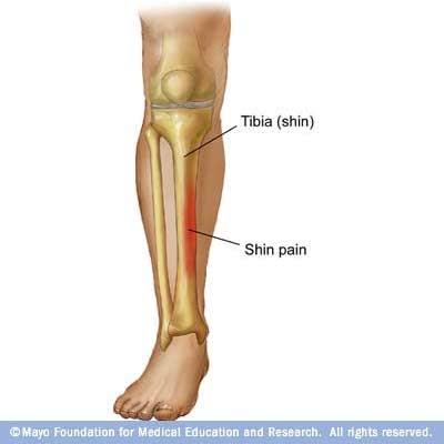 durere în articulația tibiei revărsat în inversarea superioară a tratamentului articulației genunchiului