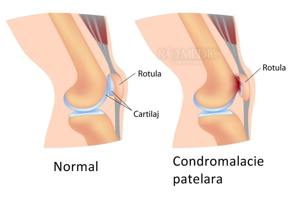 tratamentul rupturii ligamentului lateral al genunchiului