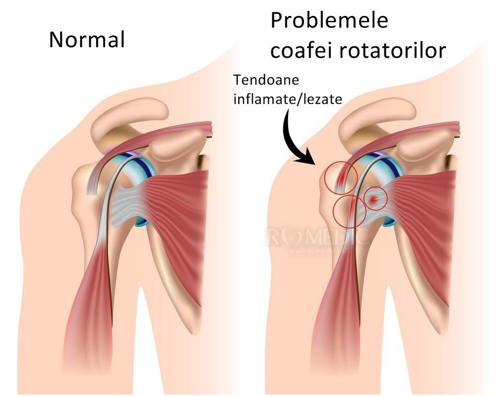 durere plictisitoare în articulația umărului durere în articulația genunchiului atunci când mergeți