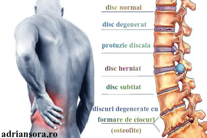 durerile de spate tratament