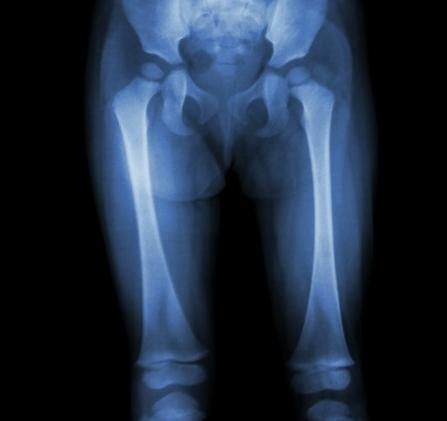 dureri articulare la copii noaptea semne de inflamație a articulațiilor piciorului