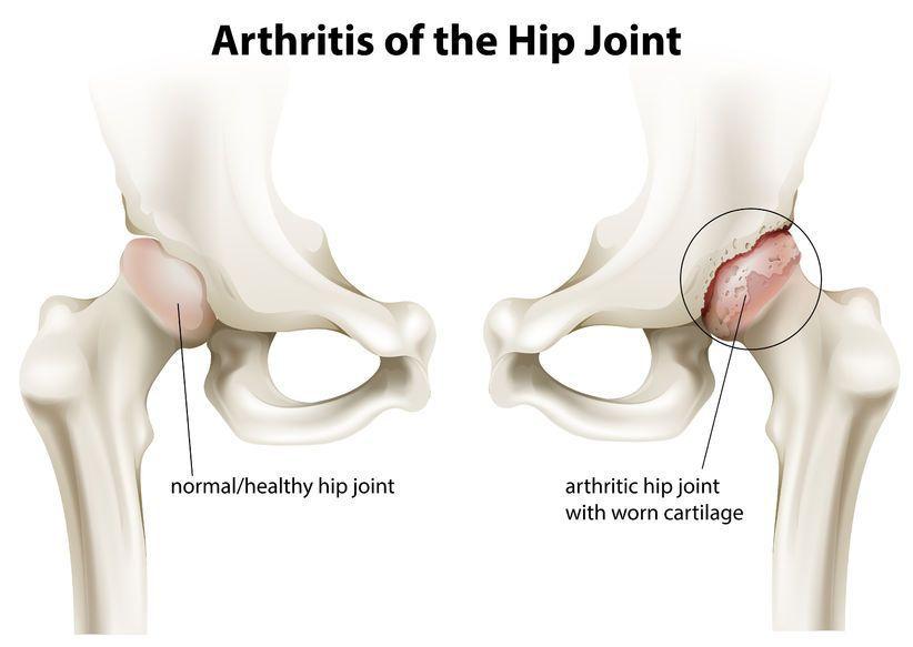 dureri de genunchi cu artroza articulației șoldului