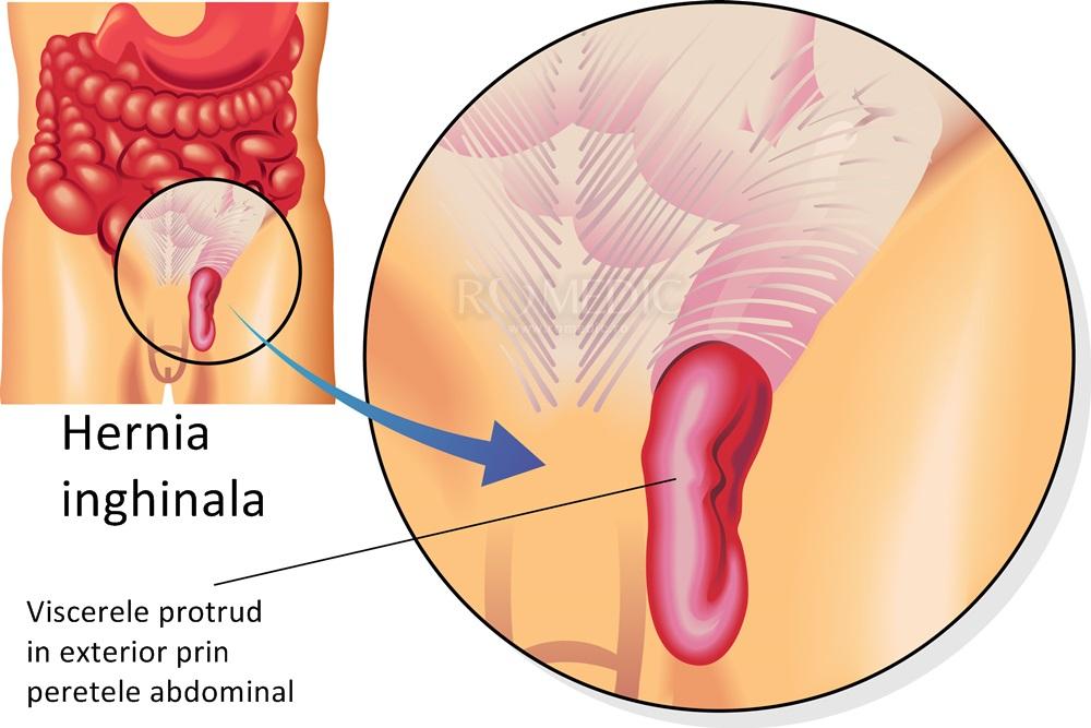 dureri femurale la femei refacerea sacului articular al genunchiului