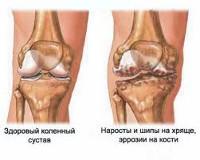 двусторонний гонартроз I степени при лечении коленного сустава dureri de braț la cot