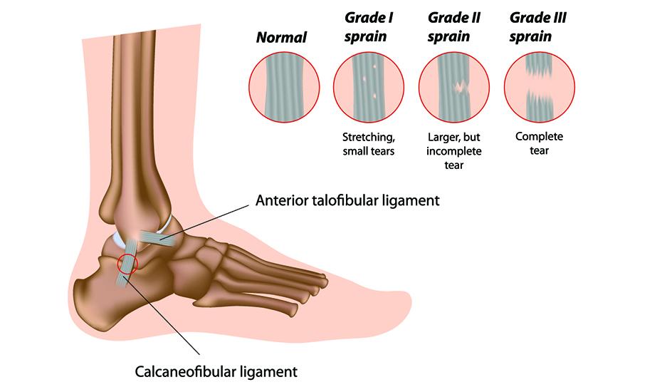 genunchiul a căzut din articulație inflamarea leucocitelor articulare