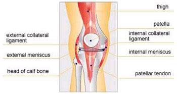 articulația bolnavă a genunchiului