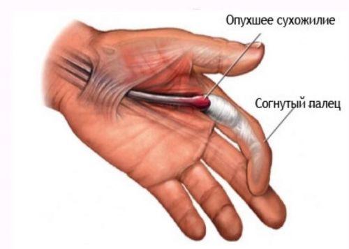 ce este acolo cu boala la genunchi medicamente pentru durerile articulare