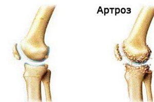 articulațiile genunchiului rănesc artroza