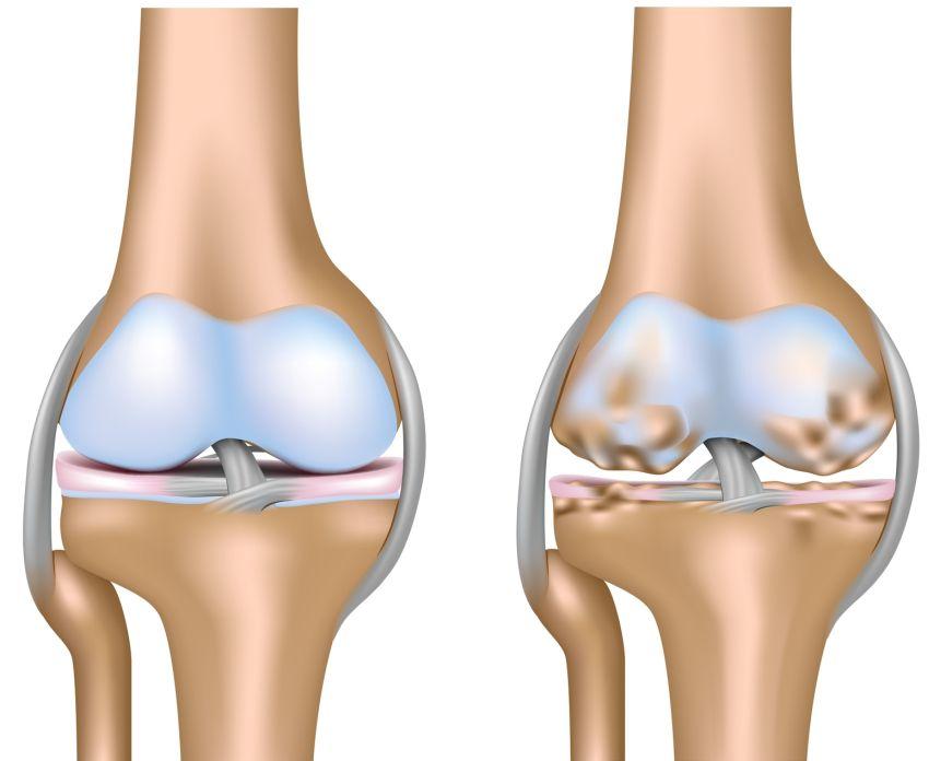 edem al măduvei osoase a articulației genunchiului