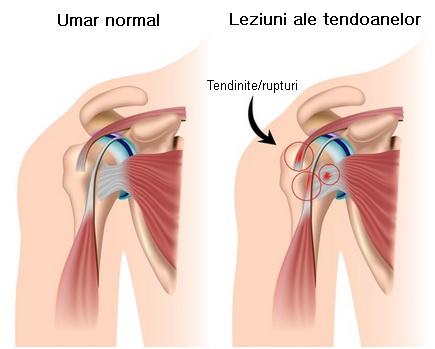 exerciții pentru durerea în tratamentul articulațiilor umărului