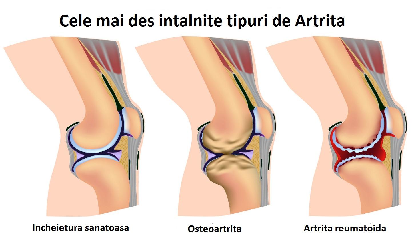 tratament artrita picior