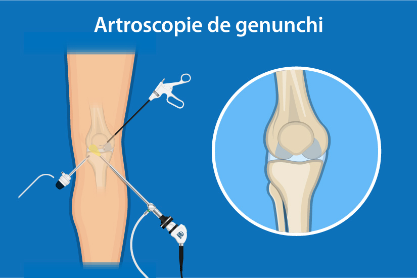 deteriorarea meniscului medial al sinovitei genunchiului