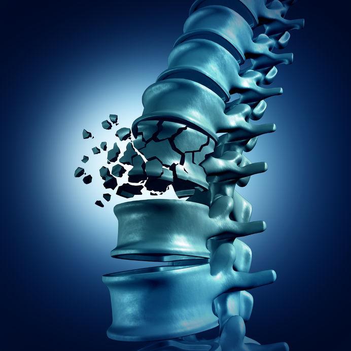Osteochondroza lombară simptome medicamente de tratament - Pregătirea comună