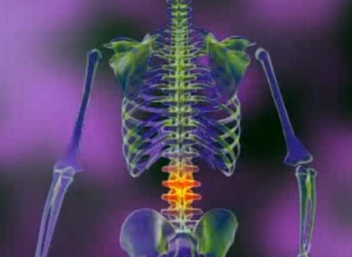 tratamentul articulațiilor ierbii recenzii pentru tratamentul articular al dimexidului