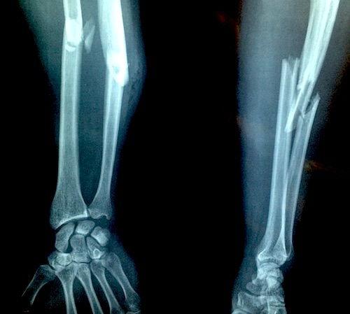 fisurarea articulațiilor după rănire medicamente pentru exacerbarea osteochondrozei coloanei vertebrale cervicale