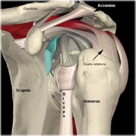 injecții pentru tratamentul artrozei umărului toate medicamentele pentru tratamentul cartilajului