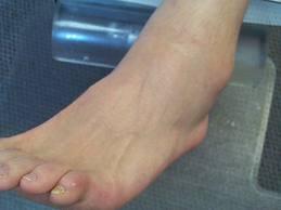 cu tratament cu artrita artrita unguente pentru durere în articulație