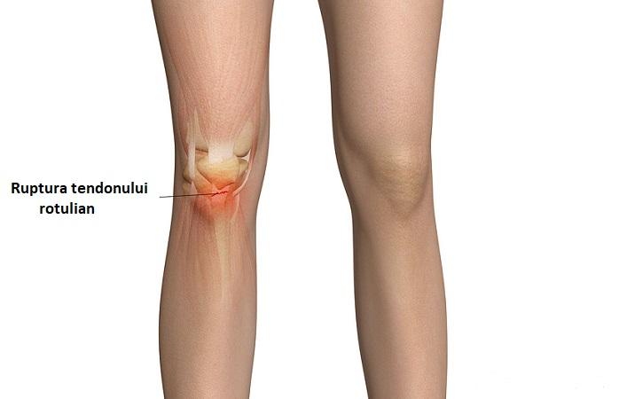 leziuni vechi la genunchi preparate intramusculare pentru articulații