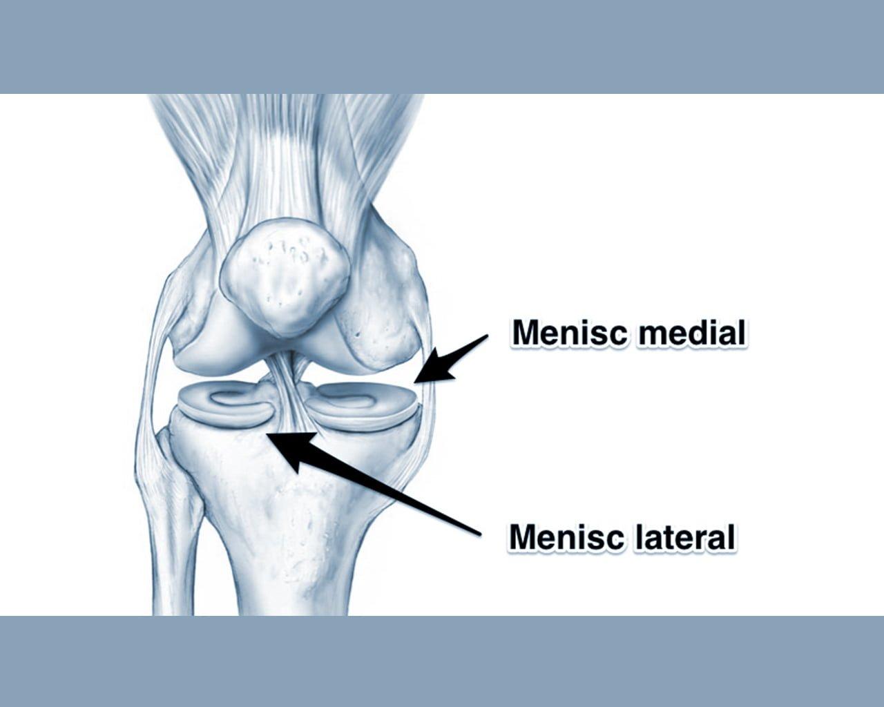 meniscul afectează literatura de genunchi