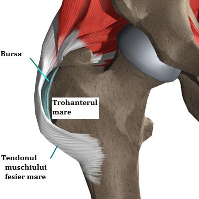pentru a trata bursita articulației șoldului diagnosticarea artritei reumatoide a genunchiului