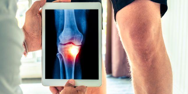 perioada de recuperare a entorsei genunchiului inflamația articulațiilor din partea inferioară a spatelui