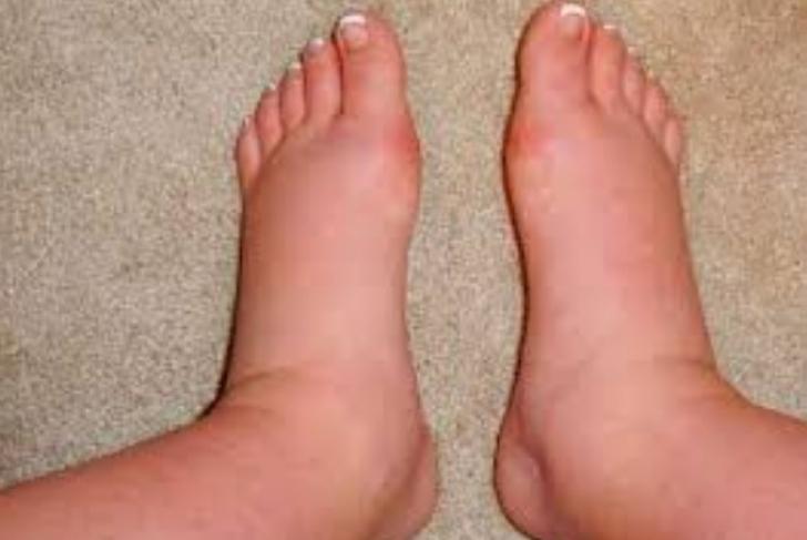 de ce se umfla picioarele