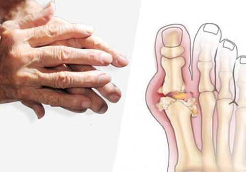 artrita reumatoidă tratează homeopatia tratamentul articular al bursitei calcaroase