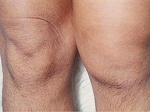 reiter tratament articular cum să tratezi un genunchi umflat cu artrită