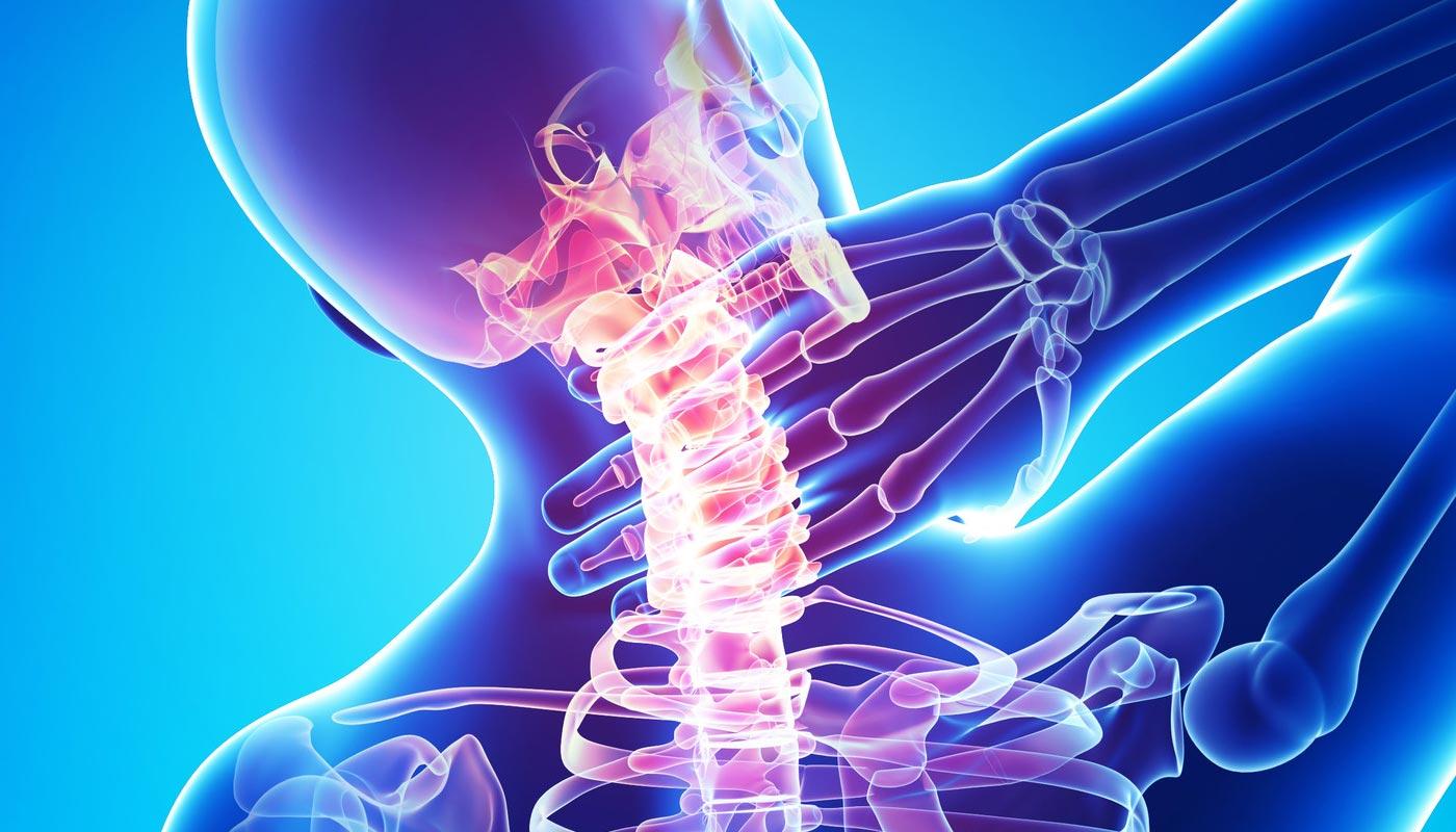 remedii pentru osteochondroza coloanei vertebrale cervicale metastaze ale durerii articulare