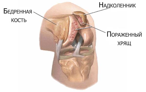 Revărsat în cavitatea tratamentului articulației genunchiului