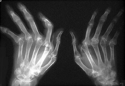 tratament cu artroza lumânărilor cele mai bune medicamente pentru osteochondroza lombară