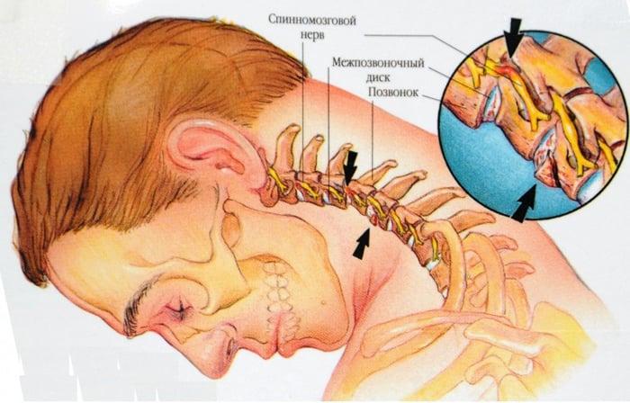 osteocondroza cervicală și vederea