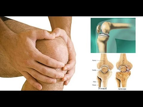 care va ameliora durerea articulațiilor genunchiului dureri articulare mișcare umăr