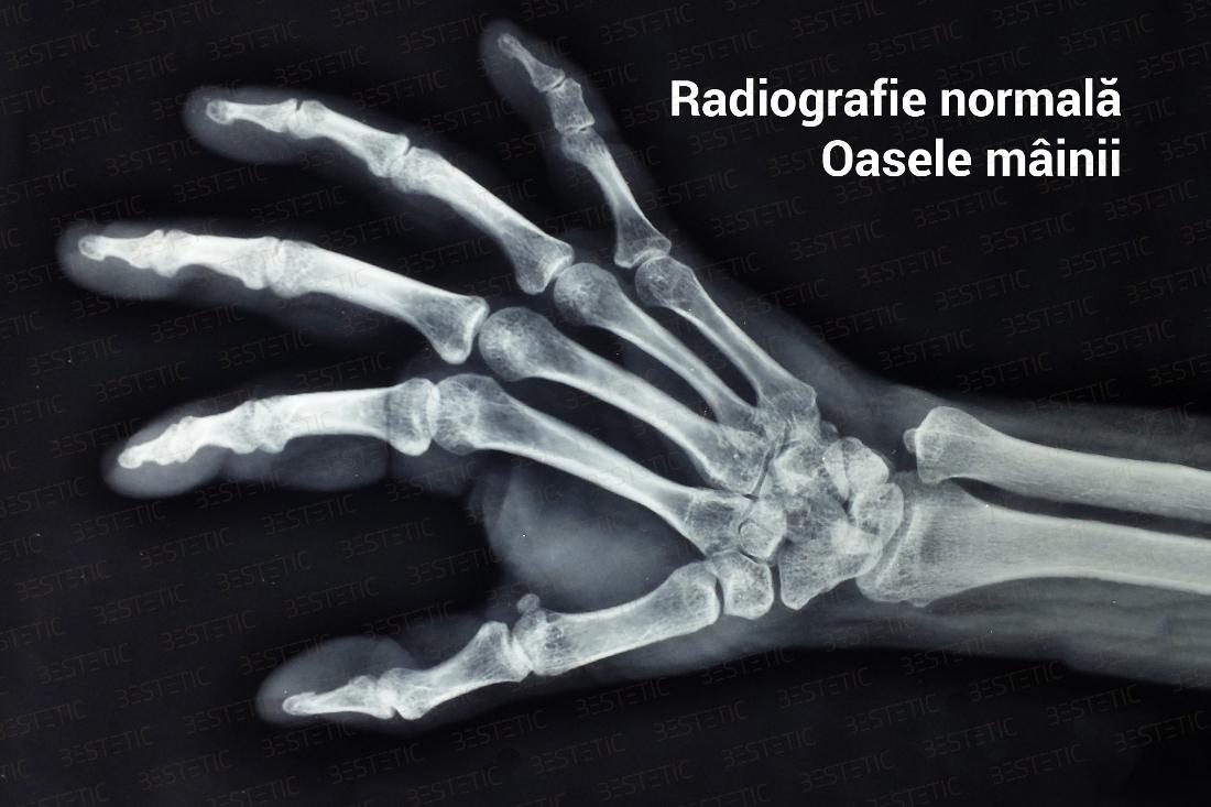 tratamentul magnetoterapiei artrozei genunchiului unguent pentru durere la nivelul articulației umărului
