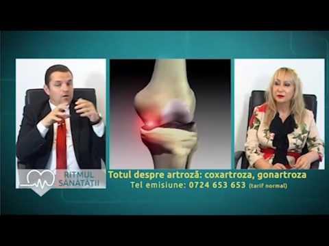 tratamentul artrozei în serbia