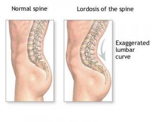 tratamentul bolilor coloanei vertebrale și articulațiilor din Podolsk articulațiile doare mai mult de 10 ani