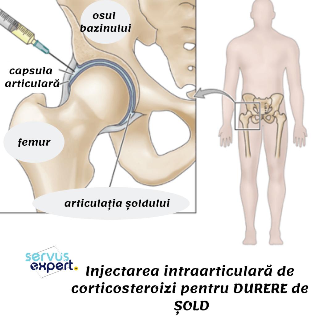tratamentul condromului de șold articulațiile artritei doare constant