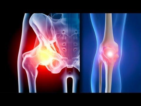 Despre tratamentul artrozei și artritei