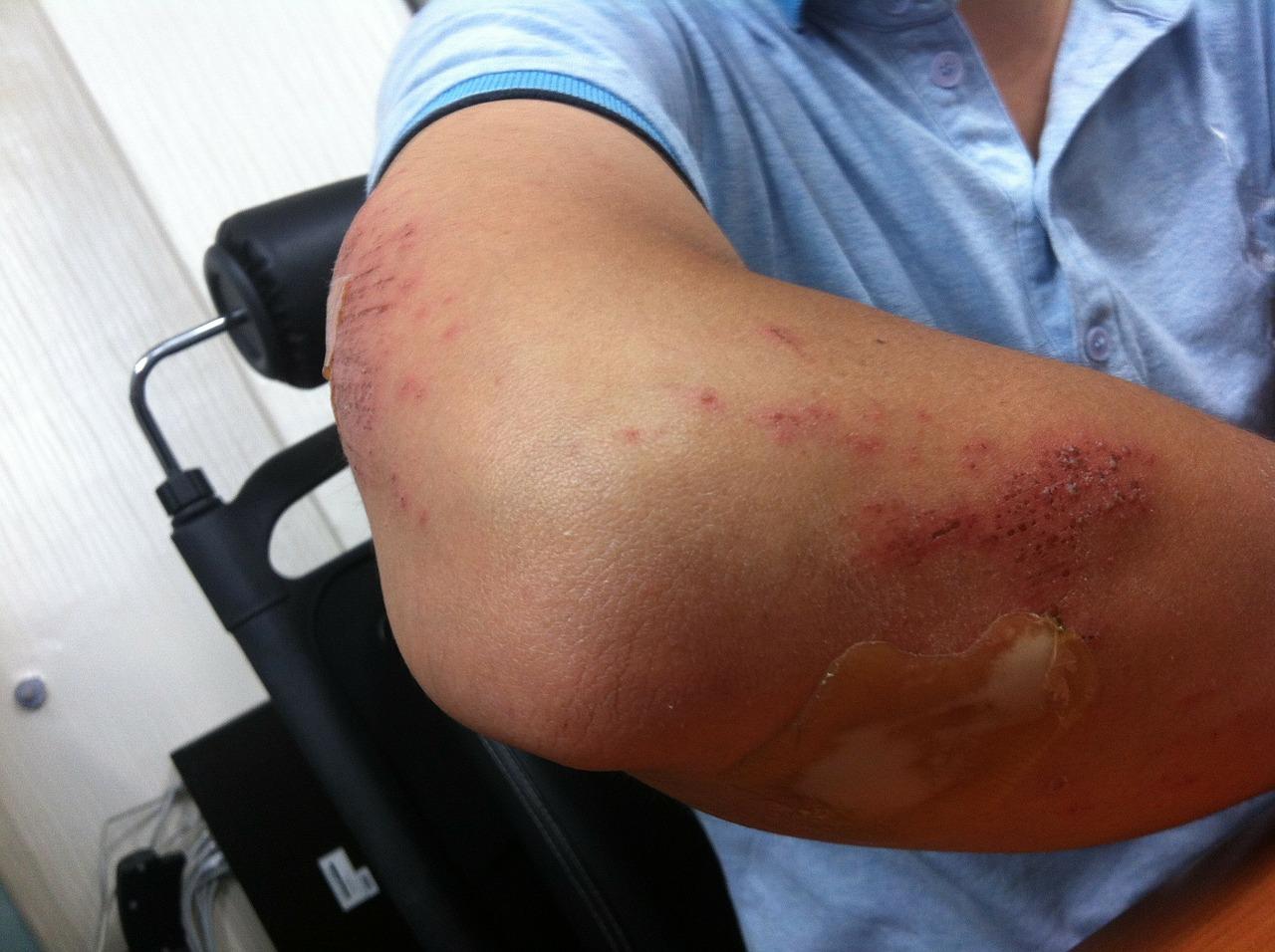 tratamentul reflectat al durerilor de cot dureri articulare din sare