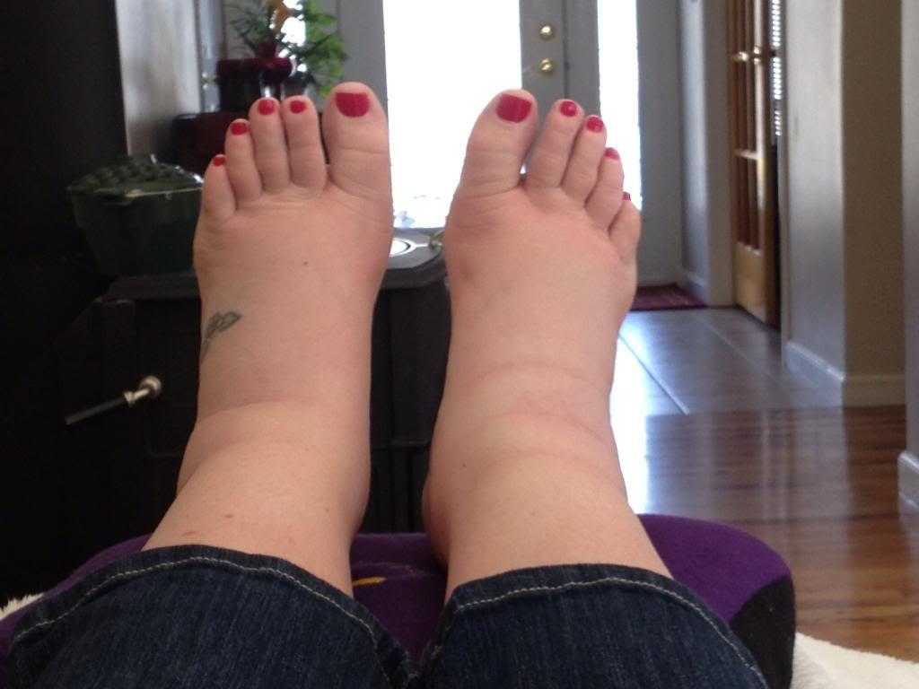 cauza de tratament pentru picioare în picioare)
