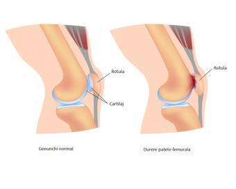 dureri de genunchi și intervenții chirurgicale cum să tratezi displazia cotului