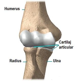 artrita și artroza tratament instrument