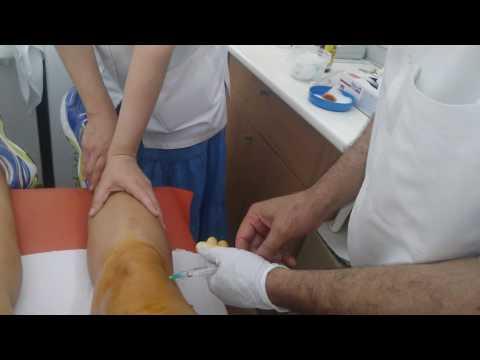durerea tuturor articulațiilor din brațe gelatina ca tratament pentru artroza genunchiului