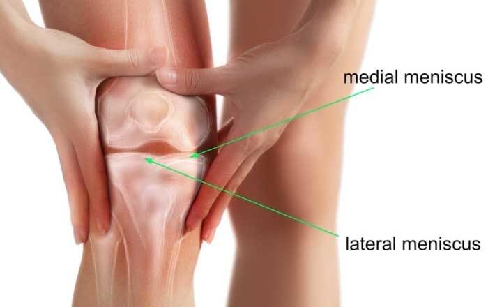 deteriorarea meniscului genunchiului de gradul doi tratarea articulațiilor frunzelor de arțar