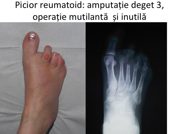 artrita falangei degetelor de la picioare gel pentru articulații din artroză